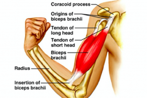 Physiotherapists in Tralee – Bicep Tendon Tears